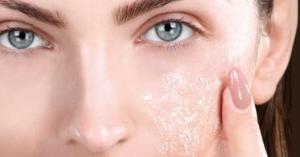 VIDEO: peeling viso naturale contro punti neri e imperfezioni