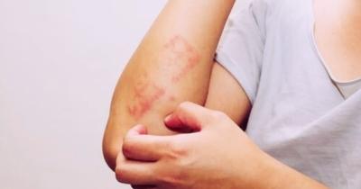 Affronta la dermatite da stress con questi rimedi naturali potenti