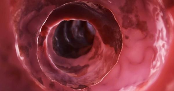 Come ridurre l'infiammazione intestinale se fai questo
