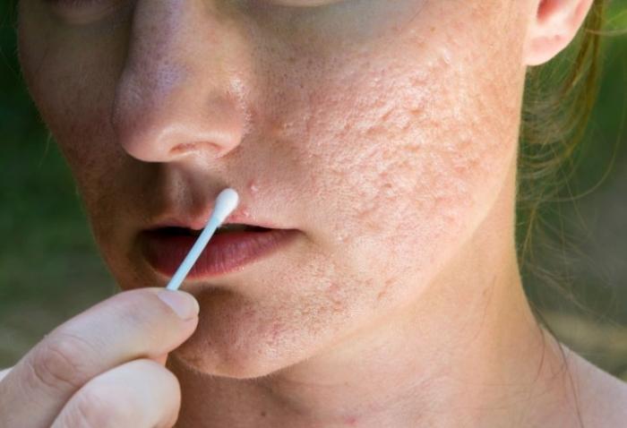 Rimedi e consigli ayurvedici contro l'acne